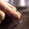 Caduta dei capelli: come vivi il problema?