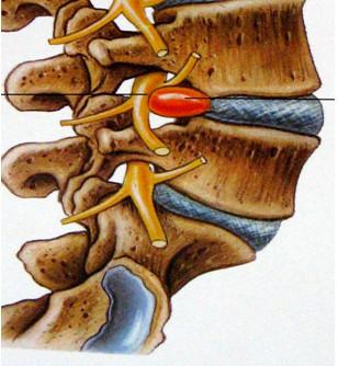 Trattamento di vene su un collo